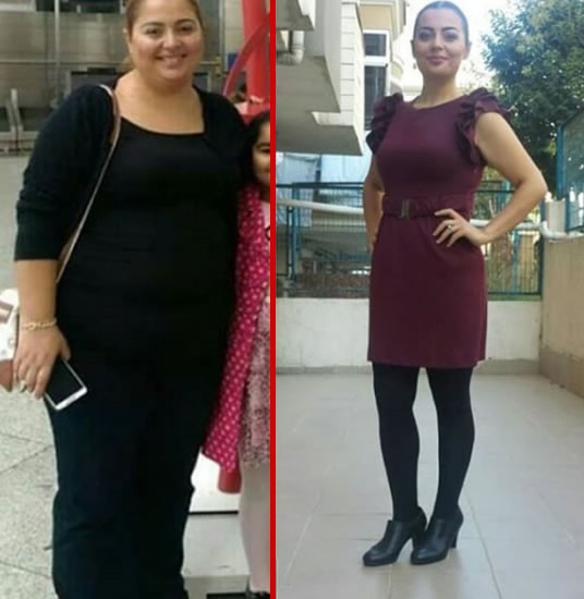 Gastric Sleeve Result Woman