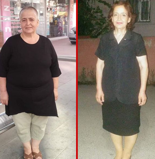 Gastric Sleeve Result Woman(Older)